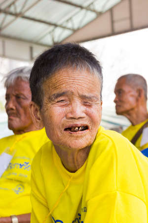 CHIANG RAI, THAILAND - FEBRUARY 19 : Unidentified old asian woman suffering from leprosy on February 19, 2016 in Chiang rai, Thailand.