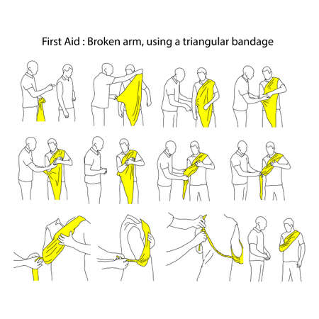 Broken arm using a triangular bandage vector illustration outline sketch hand drawn with black lines isolated on white background. First aid process. Stock Illustratie