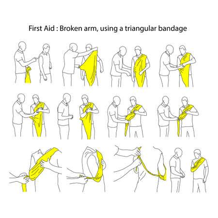 Złamane ramię za pomocą trójkątnego bandaża wektor ilustracja kontur szkicu ręcznie rysowane z czarnymi liniami na białym tle. Proces pierwszej pomocy. Ilustracje wektorowe