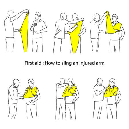 How to sling an injured arm vector illustration outline sketch hand drawn with black lines isolated on white background