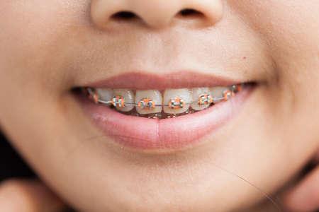 zafiro: Primer frenos cerámicos y metálicos en los dientes. Amplia sonrisa con Soportes auto-ligado. El tratamiento de ortodoncia. Mujer sonriente que muestra frenos dentales.