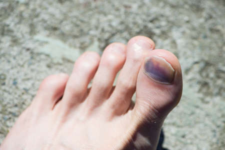 crimped: caucasian foot with blue big toe and nail after accident Stock Photo