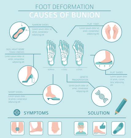 Deformacja stopy jako infografika choroby medycznej. Przyczyny haluksów. Ilustracji wektorowych
