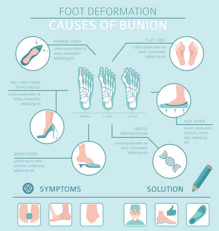 Foot deformation as medical desease infographic. Causes of bunion. Vector illustration 向量圖像