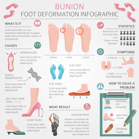 Foot deformation as medical desease infographic. Causes of bunion. Vector illustration Illustration