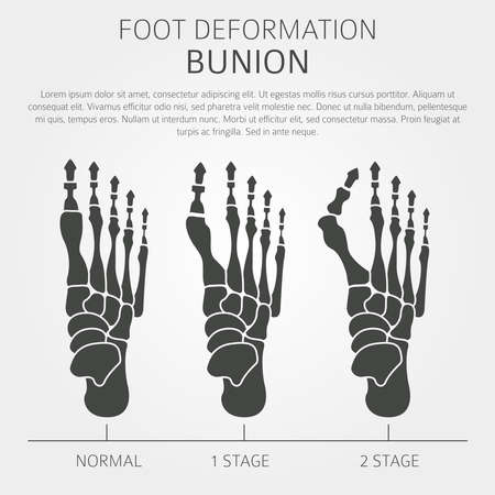Foot deformation as medical desease infographic. Causes of bunion. Vector illustration Ilustração
