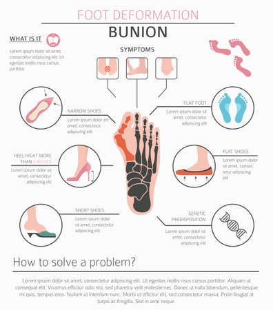 Foot deformation as medical desease infographic. Causes of bunion. Vector illustration Ilustracja
