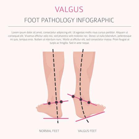 Foot deformation as medical desease infographic. Valgus and varus defect. Vector illustration