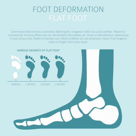 Foot deformation as medical desease infographic. Causes of Flat foot. Vector illustration Illustration