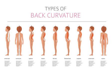 Tipos de curvatura de la espalda. Infografía de enfermedad médica. Ilustración vectorial