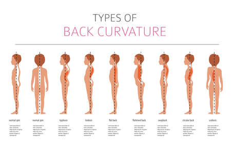 Types de courbure du dos. Infographie de la maladie médicale. Illustration vectorielle
