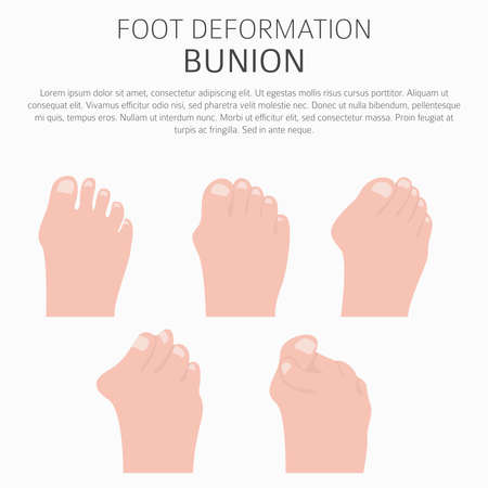 Foot deformation as medical desease infographic. Causes of bunion. Vector illustration Ilustração