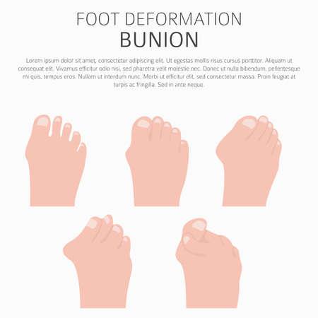 Fußdeformation als Infografik für medizinische Erkrankungen. Ursachen der Bunion. Vektorillustration Vektorgrafik
