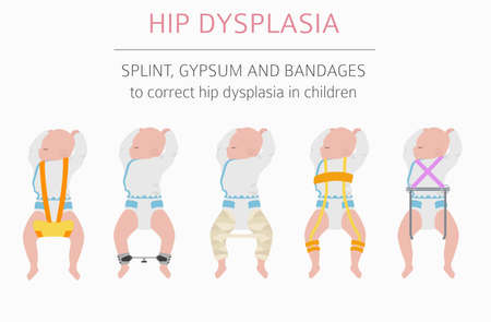 Foot deformation types,  medical desease infographic. Hip dysplasia in children. Vector illustration