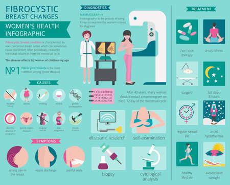 Fibrocystic breast changes disease, medical infographic. Diagnostics, symptoms, treatment. Women`s health icon set. Vector illustration