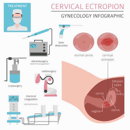 Cervical ectropion. Ginecological medical desease infographic. Vector illustration