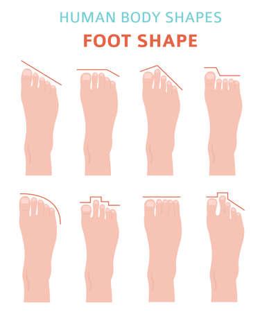 Formes du corps humain. Jeu d'icônes de types de pieds. Illustration vectorielle