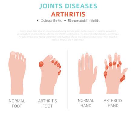 Maladies des articulations. Symptômes de l'arthrite, jeu d'icônes de traitement. Conception infographique médicale. Illustration vectorielle