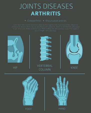 Gewrichtsziekten. Artritis symptomen, behandeling pictogramserie. Medisch infographic ontwerp. Vector illustratie