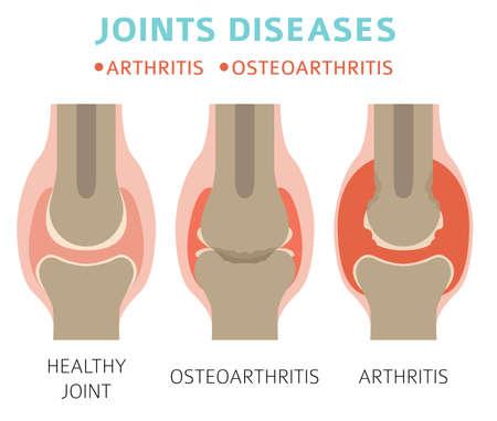 Maladies des articulations. Arthrite, symptômes d'arthrose, jeu d'icônes de traitement. Conception infographique médicale. Illustration vectorielle Vecteurs