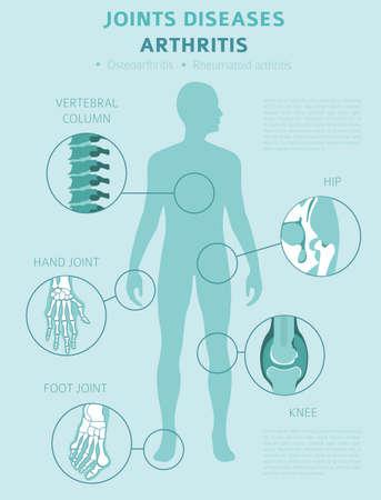 Maladies des articulations. Symptômes de l'arthrite, jeu d'icônes de traitement. Conception infographique médicale. Illustration vectorielle Vecteurs