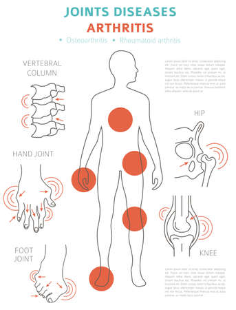 Joints diseases. Arthritis symptoms, treatment icon set. Medical infographic design.  Vector illustration Illustration