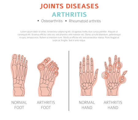 Joints diseases. Arthritis symptoms, treatment icon set. Medical infographic design.  Vector illustration Иллюстрация