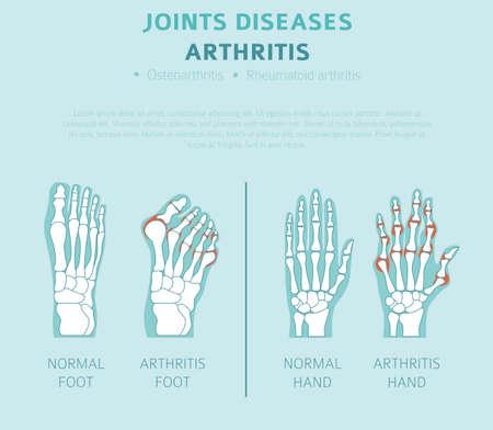 Joints diseases. Arthritis symptoms, treatment icon set. Medical infographic design.  Vector illustration Vectores
