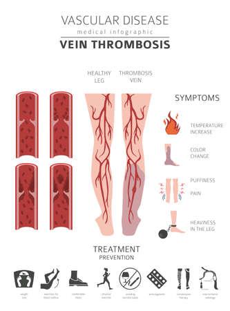 Gefäßerkrankungen. Venenthrombose-Symptome, Behandlungssymbolsatz. Medizinisches Infografik-Design. Vektorillustration