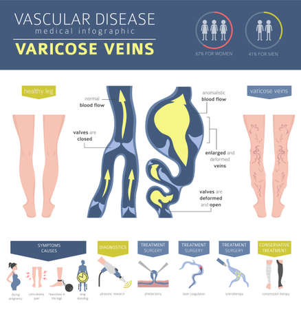 Vascular diseases. Varicose veins symptoms, treatment icon set. Medical infographic design. Vector illustration Vector Illustration