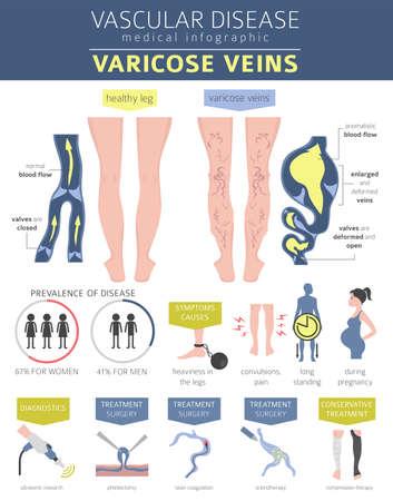 Gefäßerkrankungen. Krampfadern Symptome, Behandlung Symbol gesetzt. Medizinisches Infografik-Design. Vektorillustration