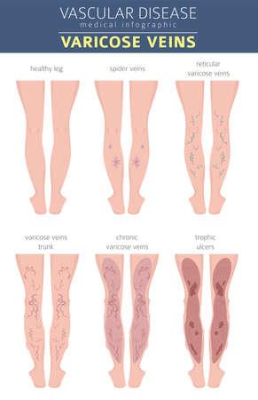Gefäßerkrankungen. Krampfadern Symptome, Behandlungssymbol gesetzt. Medizinisches Infografik-Design. Vektorillustration Vektorgrafik