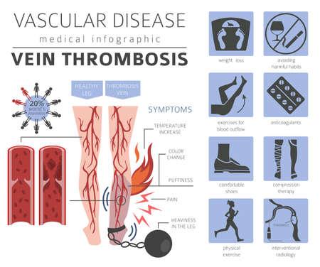 Vascular diseases. Vein thrombosis symptoms, treatment icon set. Medical infographic design. Vector illustration