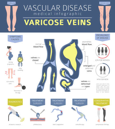 Malattie vascolari. Sintomi di vene varicose, set di icone di trattamento. Progettazione infografica medica. Illustrazione vettoriale Vettoriali