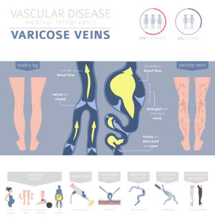 Maladies vasculaires. Symptômes des varices, jeu d'icônes de traitement. Conception infographique médicale. Illustration vectorielle