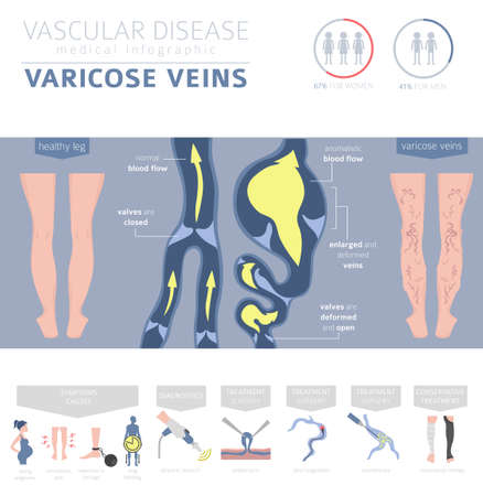 Malattie vascolari. Sintomi di vene varicose, set di icone di trattamento. Progettazione infografica medica. Illustrazione vettoriale
