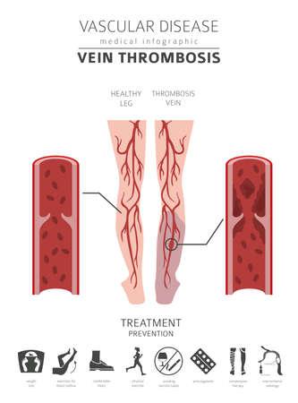 Enfermedades vasculares. Síntomas de trombosis venosa, conjunto de iconos de tratamiento. Diseño de infografía médica. Ilustración vectorial Ilustración de vector