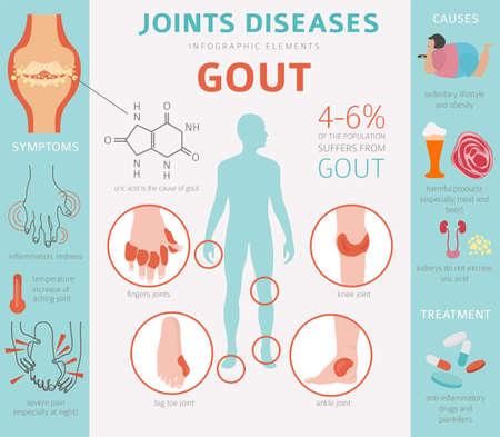 Maladies des articulations. Symptômes de la goutte, jeu d'icônes de traitement. Conception infographique médicale. Illustration vectorielle