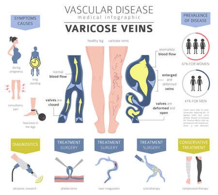 Enfermedades vasculares. Síntomas de las venas varicosas, conjunto de iconos de tratamiento. Diseño de infografía médica. Ilustración vectorial