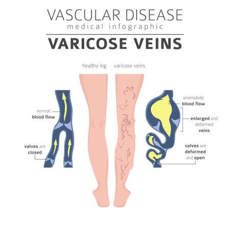 Vascular diseases. Varicose veins symptoms, treatment icon set. Medical infographic design. Vector illustration