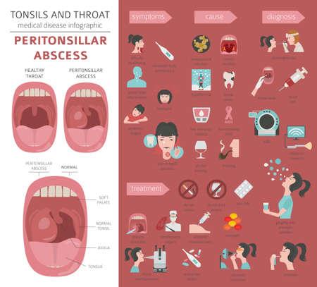 Tonsils and throat diseases. Peritonsillar abscess symptoms, treatment icon set. Medical infographic design. Vector illustration Vetores