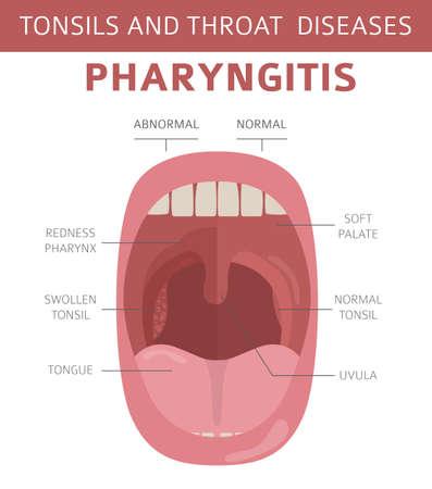 Tonsils and throat diseases. Pharyngitis symptoms, treatment icon set. Medical infographic design. Vector illustration