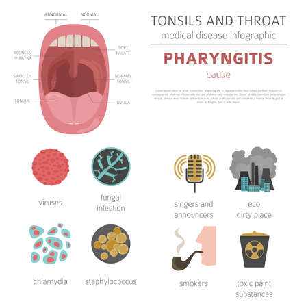 Tonsils and throat diseases. Pharyngitis symptoms, treatment icon set. Medical infographic design. Vector illustration