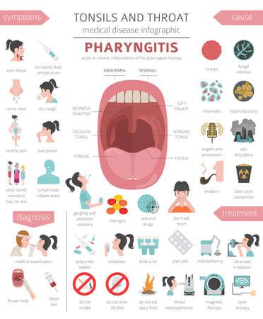 Enfermedades de las amígdalas y la garganta. Síntomas de faringitis, conjunto de iconos de tratamiento. Diseño de infografía médica. Ilustración vectorial