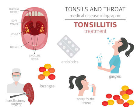 Tonsils and throat diseases. Tonsillitis symptoms, treatment icon set. Medical infographic design. Vector illustration