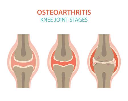 Conception d'infographie médicale sur l'arthrite, l'arthrose. Remplacement articulaire, implantant. Illustration vectorielle