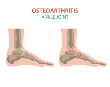 Arthritis, Arthrose medizinisches Infografik-Design. Gelenkersatz, implantierbar. Vektor-Illustration Vektorgrafik