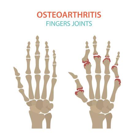 Arthritis, Arthrose medizinisches Infografik-Design. Gelenkersatz, implantierbar. Vektor-Illustration