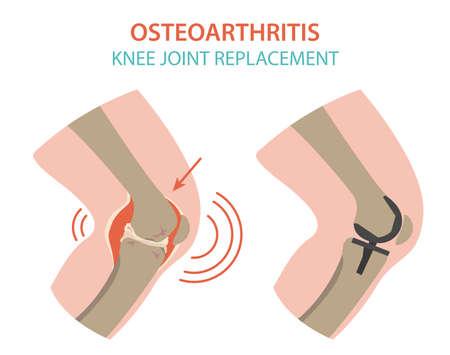 Conception d'infographie médicale sur l'arthrite, l'arthrose. Remplacement articulaire, implantant. Illustration vectorielle Vecteurs