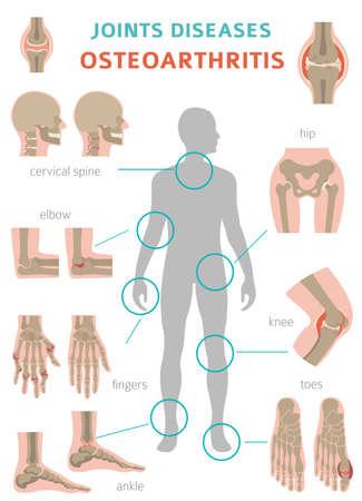 Conception infographique médicale sur l'arthrite, l'arthrose. Remplacement articulaire, implantant. Illustration vectorielle Vecteurs